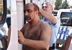 Antalya'da bıçaklı-sopalı kavga: 3 yaralı
