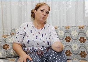 Elindeki uyuşma için gittiği hastanede kolundan oldu
