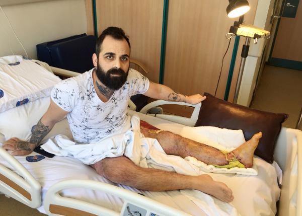 Kazada ayağı kopan rehber: Gençliğimi çaldılar